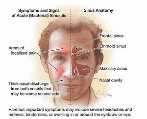 Adult Sinusitis