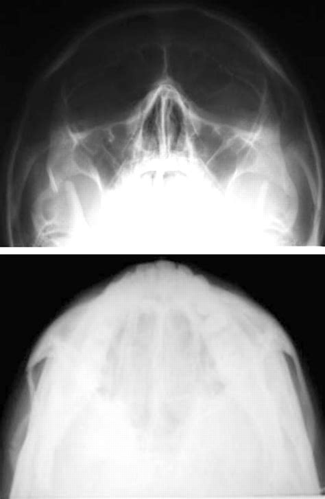 zygomatic arch maxillofacial injuries figure fractures orbitozygomatic emergency diagnosis complex department common management bmj emj