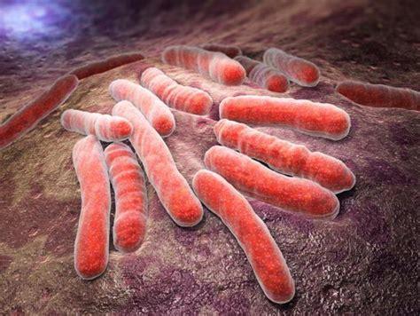 Plaušu tuberkulozes klasifikācija