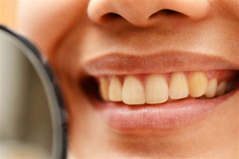 How to Smile Naturally: 5 Steps (with Pictures) - wikiHow