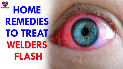 Home Remedies To Treat Welders Flash - Health Sutra - YouTube