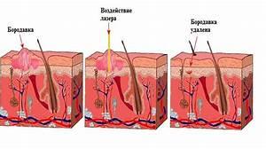 Бородавки на руках лечение гомеопатией