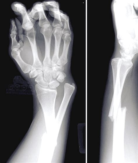 wrist fracture broken bone hand fractured fractures arm therapy ulna xray treatment recovery injuries massage weeks bones another symptoms carpal