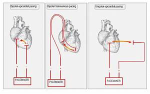 Anatomy Of The Temporary Pacemaker Circuit