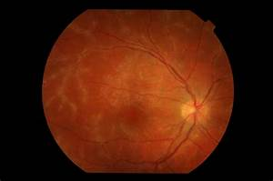 Uveitis - Pictures, posters, news and videos on your ...