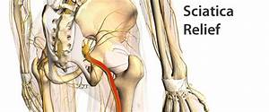 Pin Sciatic Nerve Roots Diagram on Pinterest
