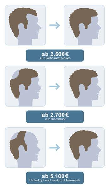 haartransplantation hamburg kosten fue fut haartransplantation bei haarausfall in hamburg kiel