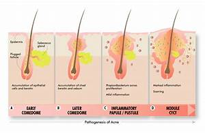 What Is Acne Acne Symptoms And What Causes Acne To Form