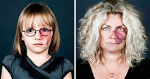 10  Portraits Of People With Birthmarks That Might Change