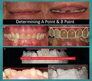 Anterior Tooth Position in Restorative Dentistry: Applying ...