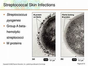 PPT - Microbial Diseases of the Skin and Eyes PowerPoint ...