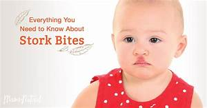Stork Bite: What You Need to Know About This Birthmark ...