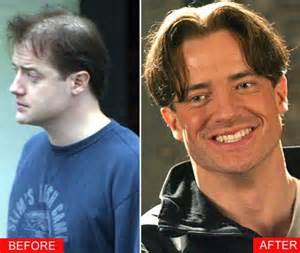 how much do hair extensions cost robbie 39 i 39 ve had a thatch done 39 joins a staggering rise