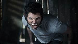 SEASON 1 EPISODE 3 PICS - Teen Wolf Photo (22863463) - Fanpop