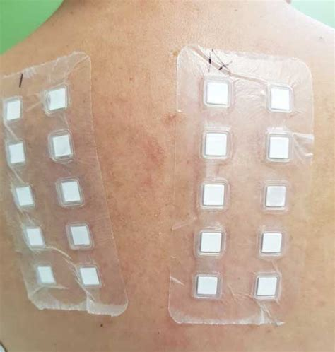 patch test alimenti patch test serie sidapa 2016 dermatite allergica da