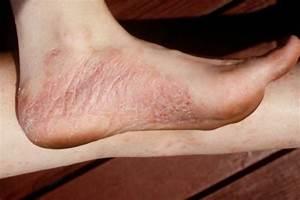 Псориаз ступней ног лечение
