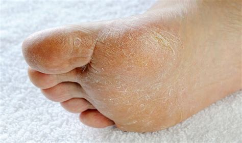 What Causes Swollen Ankles Changes To Your Feet Could Be