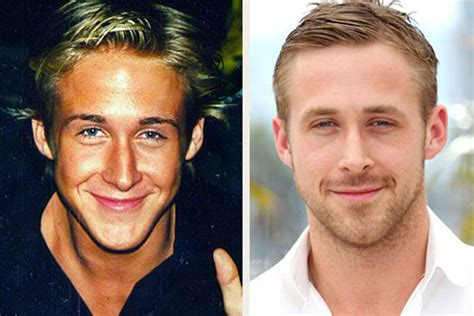 best price for nono hair removal gosling gosling nose before and after pics