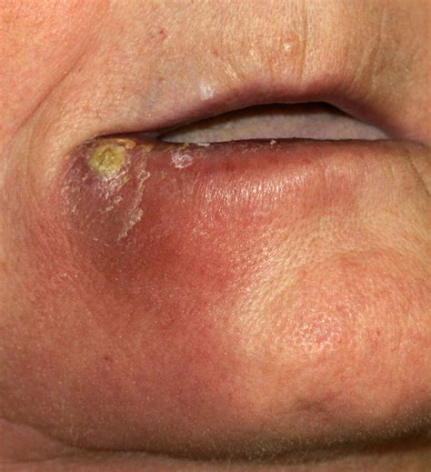 What Does Msra Stand For infection symptoms symptoms of lip infection