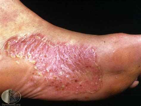Ayurvedic Treatment for Psoriasis Permanent Cure for