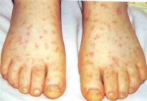 Psoriatic Arthritis Symptoms and Treatments