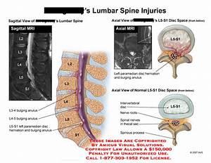 Lumbar Spine Injuries