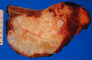 Images & Histologies of Chondrosarcoma | Sarcoma Images ...