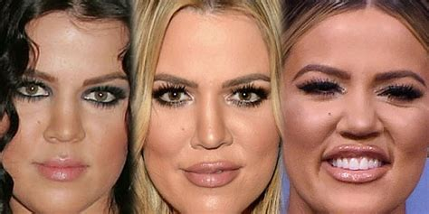 Khloe Kardashian Plastic Surgery Before and After ...