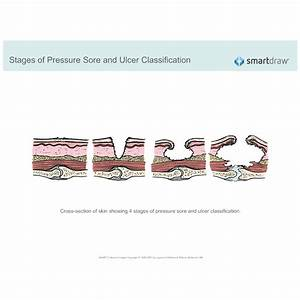 Stages Of Pressure Sore And Ulcer Classification