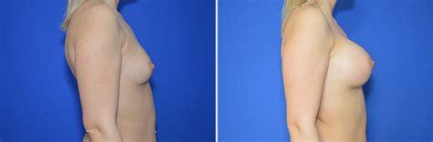 brustvergroesserung vorher nachher fotos perfekte brust