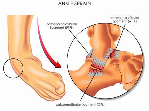 Ankle brace AM-OSS-03 | 4Kids - Braces for children
