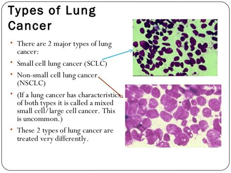 Types Of Lung Tumors Pictures To Pin On Pinterest