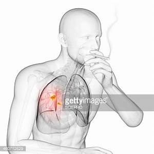 Lung Cancer Due To Smoking Artwork Stock Illustration ...