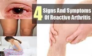 Arthritis, Reactive (Arthritis, Postinfectious) Reactive Arthritis