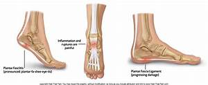 Heel Pain Diagnosis Chart