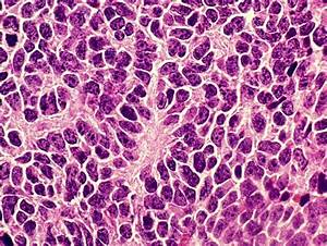 Medulloblastoma  A Nasty Tumor With A Silver Lining