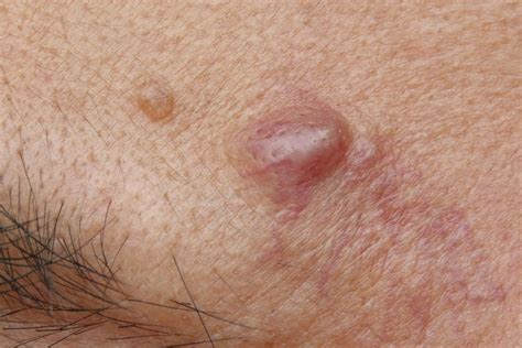 Acne types in pictures: Explanations and treatments