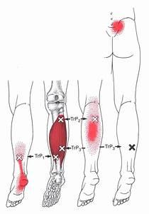 Triggerpunkt Pain Pattern Uc5d0  Uc788 Ub294  Ud540