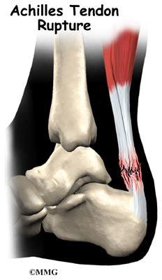 achilles tendon problems eorthopodcom