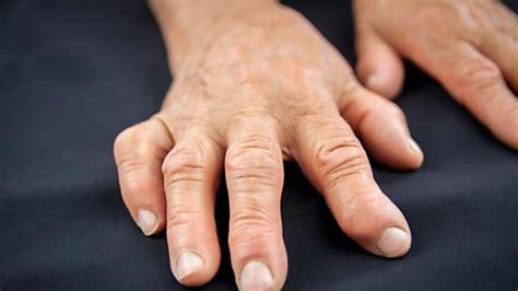 detox arthritis juice recipes elderly alternatives bra healthcentral costochondritis neck