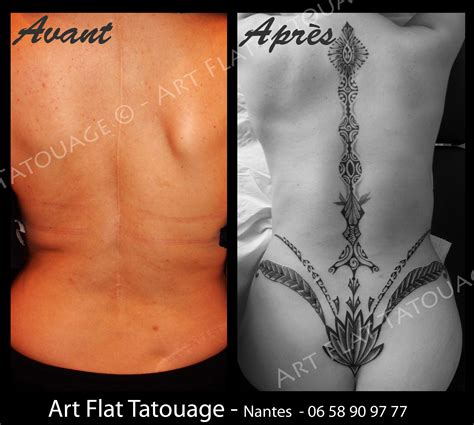 Tatouage Cicatrice Dos