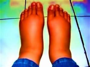 Болезнь бехтерева боли в тазобедренном суставе