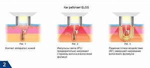 Лечение гирудотерапией отзывы псориаз