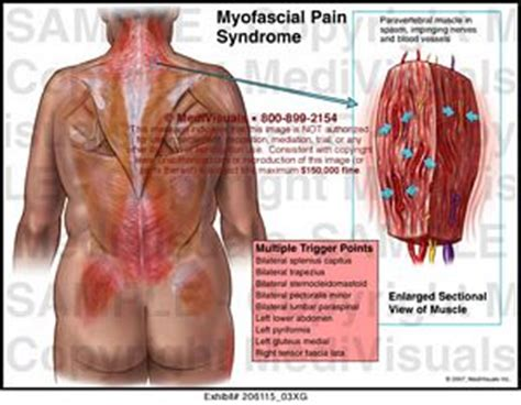 myofascial pain syndrome medical exhibit