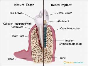 Dental Implant Parts Diagram