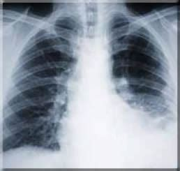 asbestos disposal health issues pass consulting uk