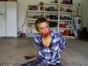 bureau d udes g ie civil jared left bloodied after fork cop sicced k 9