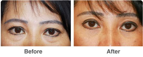 Blepharoplasty Surgery Near Corona Del Mar Cabeauty By Design Corona Plastic Surgeons Knoxville Tn Forks Recyclable Picture Holders Remove Scratches From Lenses Poly Products Narrow Storage Drawers Clear Edge Trim And The Environment