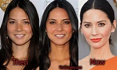 Olivia Munn Plastic Surgery: Before and After Botox, Boob ...
