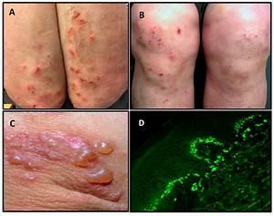 Nutrients | Free Full-Text | Dermatitis Herpetiformis: A ...